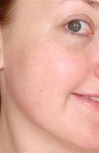 Купероз кожи