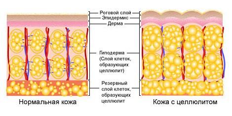 Мезотерапия- от-целлюлита