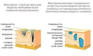 mezoterapiya-lica-1