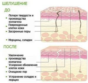 пилинг Новосибирск