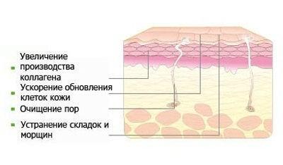 Химические пилинги в Новосибирске