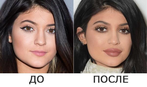 Контурная пластика филлерами в Новосибирске: до и после